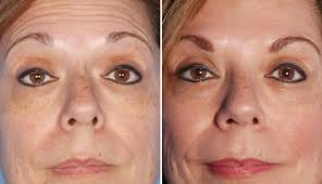 Comparaison avant et après injection de botox sur le visage d'une femme
