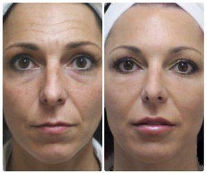 Exemple d'un visage féminin avant et après une injection de botox