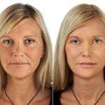 Visage d'une femme avant et après une injection d'acide hyaluronique